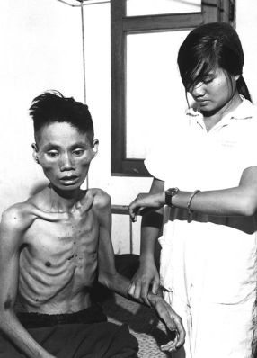 Starved_Vietnamese_man,_1966.JPEG